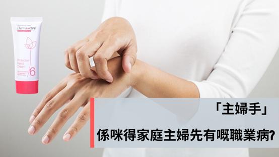 主婦手成因是家庭主婦才有的職業病?
