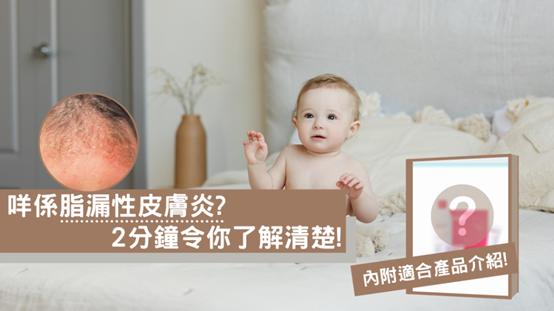 嬰兒大人都可能有脂漏性皮膚炎?