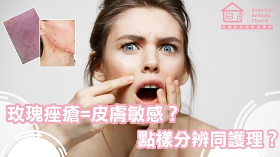 玫瑰痤瘡=皮膚敏感?點樣分辨同治療?