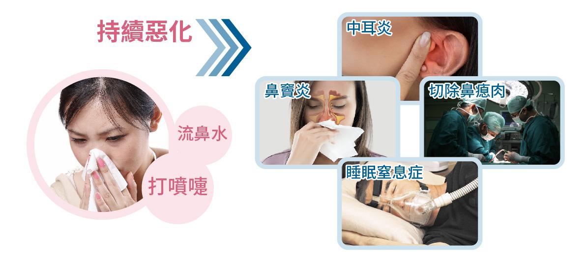 鼻敏感症狀有可能引致頭痛/中耳炎/鼻竇炎/睡眠窒息症
