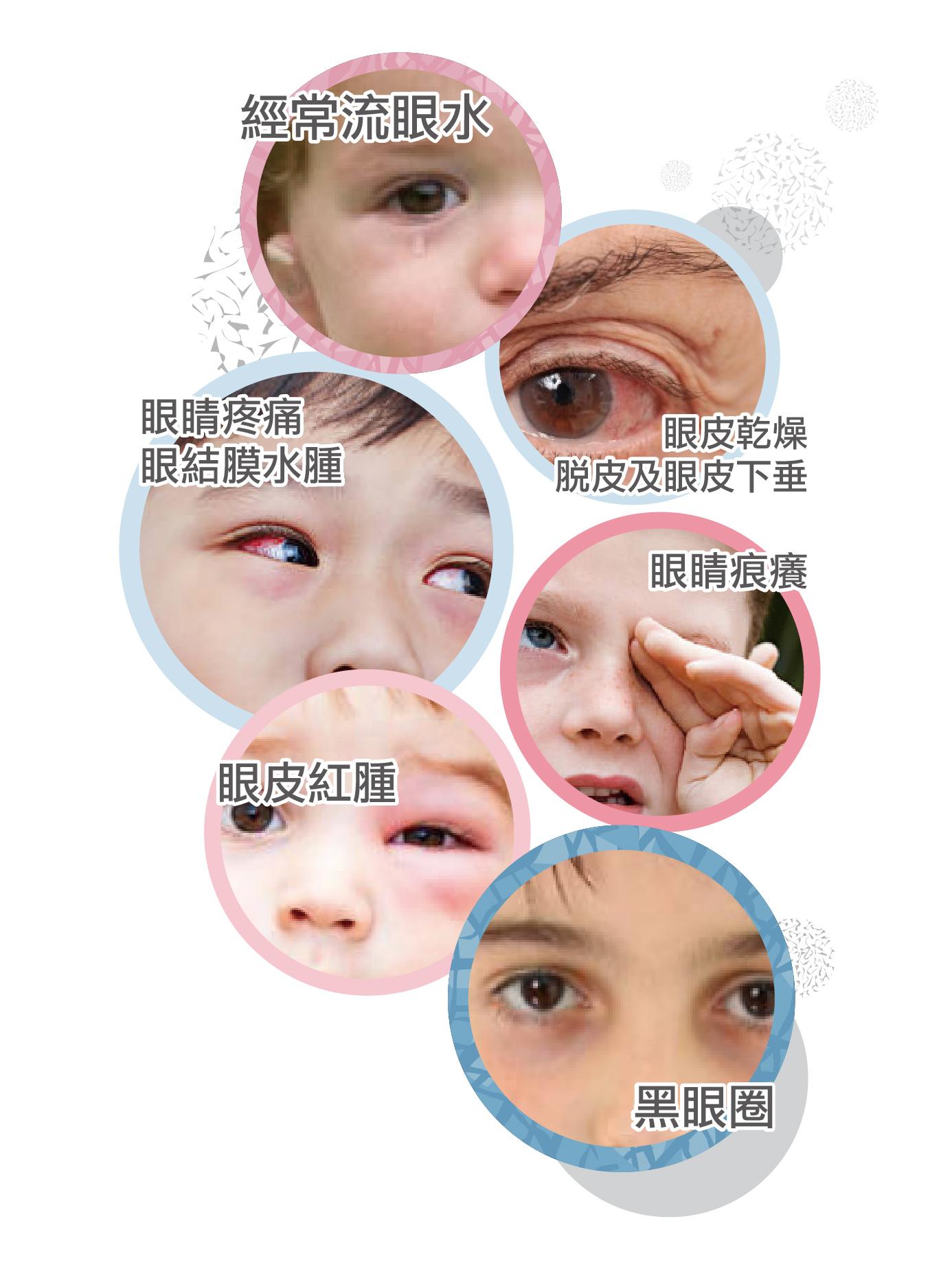 眼敏感會出現紅腫、黑眼圈、頭痛等症狀